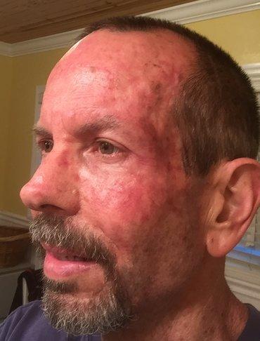Skin Cancer Forum - Efudex and calcipotriene combo w/pics